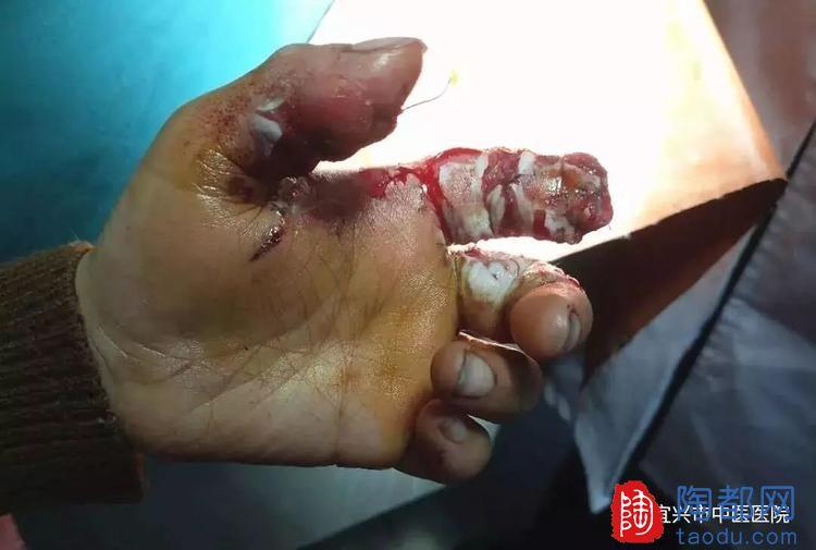 宜兴一8岁男孩玩鞭炮遭意外,一截手指被炸飞......